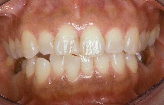 差し歯の作り方