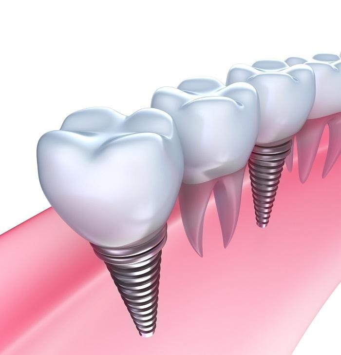 KAZZ dental clinicの考える「インプラント」とは